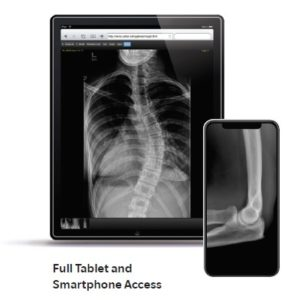 Full Tablet and Smartphone Access for PACS